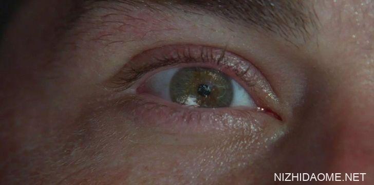 我们的眼皮工作方式有缺陷。