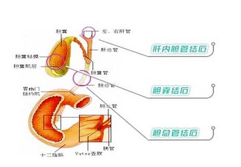 胆结石的食疗方法 如何预防胆结石