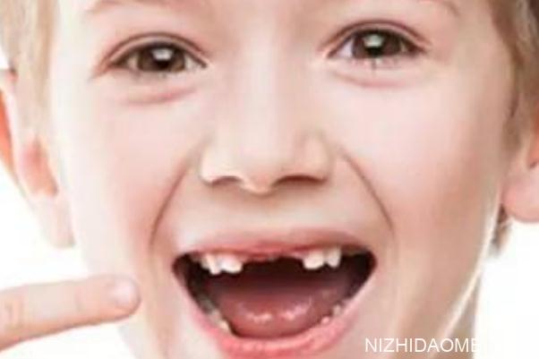 儿童换牙齿的顺序和时间 儿童换牙齿要多久时间才能长出来