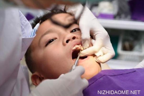 儿童换牙齿有松动多久掉 儿童换牙齿哪几颗不换